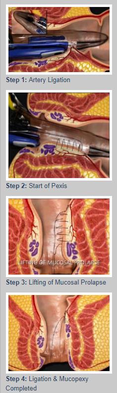 thd procedure for hemorrhoids