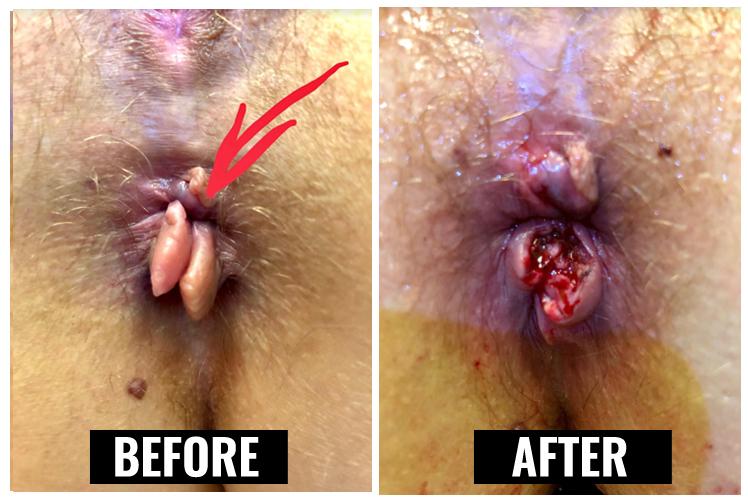 external hemorrhoids and internal hemorrhoids