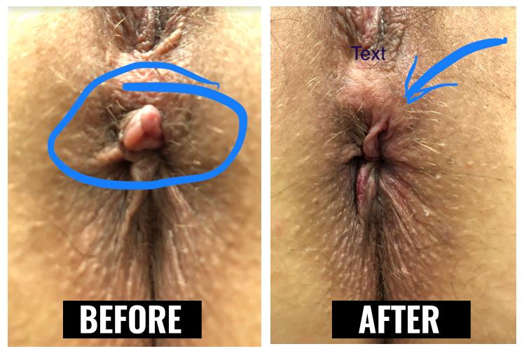 soft pliable external hemorrhoid skin tag