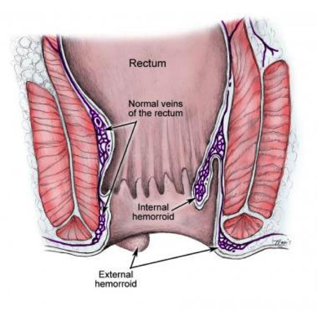 internal hemorrhoid and external hemorrhoid